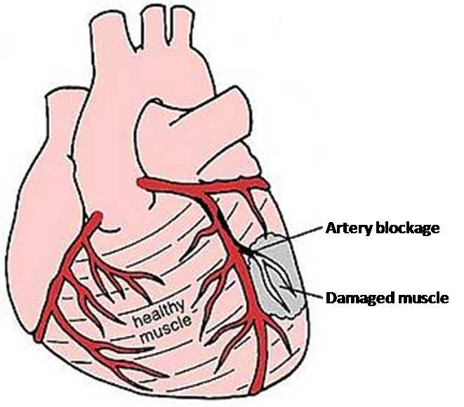 Heart attack damage