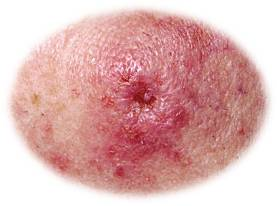 Skin cancer- squamous cell